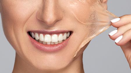 Peeling dermatologique Lille